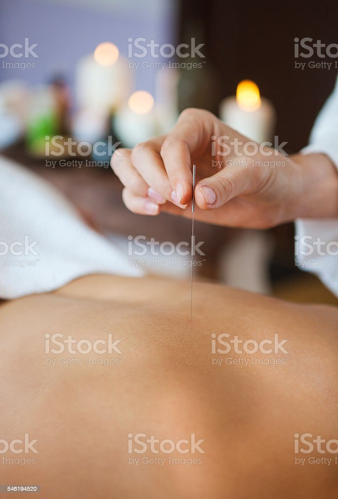 Close up of a hand placing acupuncture needle on back stock photo