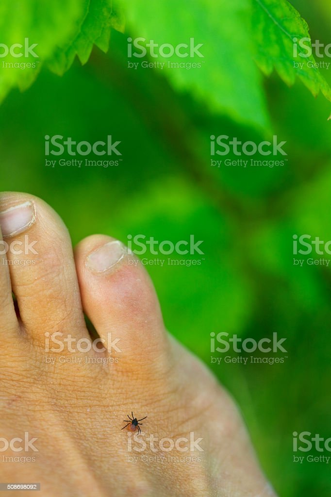 close up of a tick on human foot stock photo