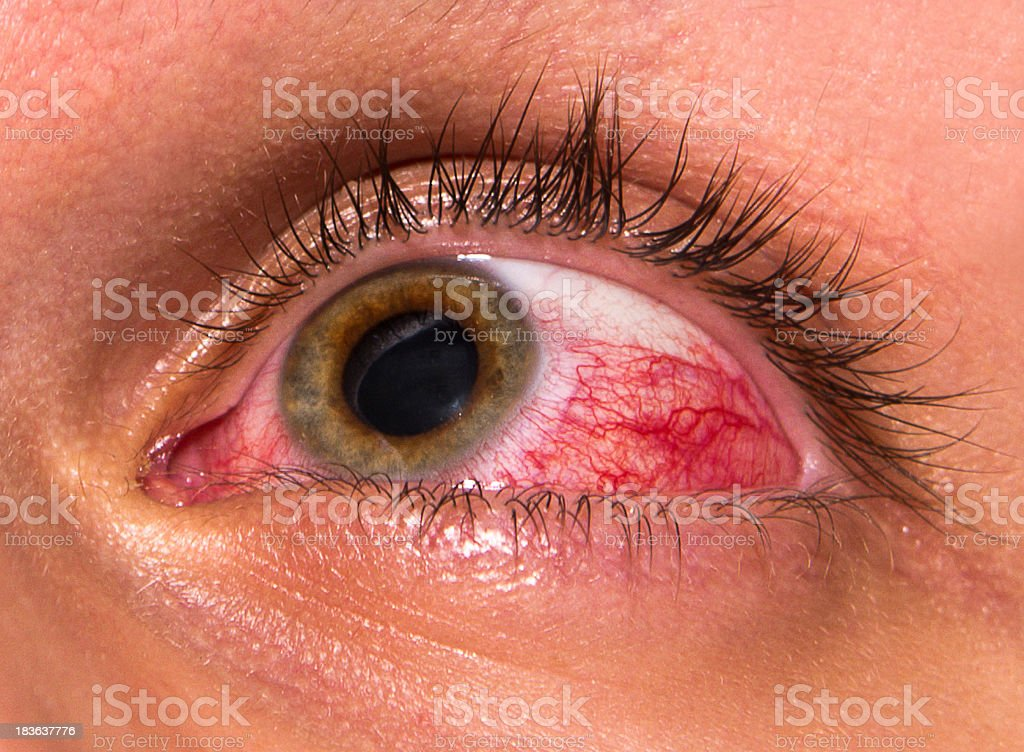 A close up of an eye aggravation after working at computer  stock photo