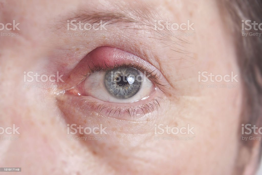 Close up of an eye with an infected eyelid royalty-free stock photo