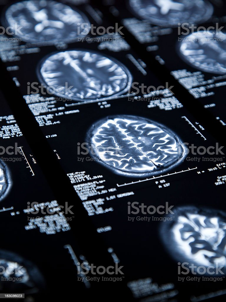A close up of an MRI of a brain royalty-free stock photo