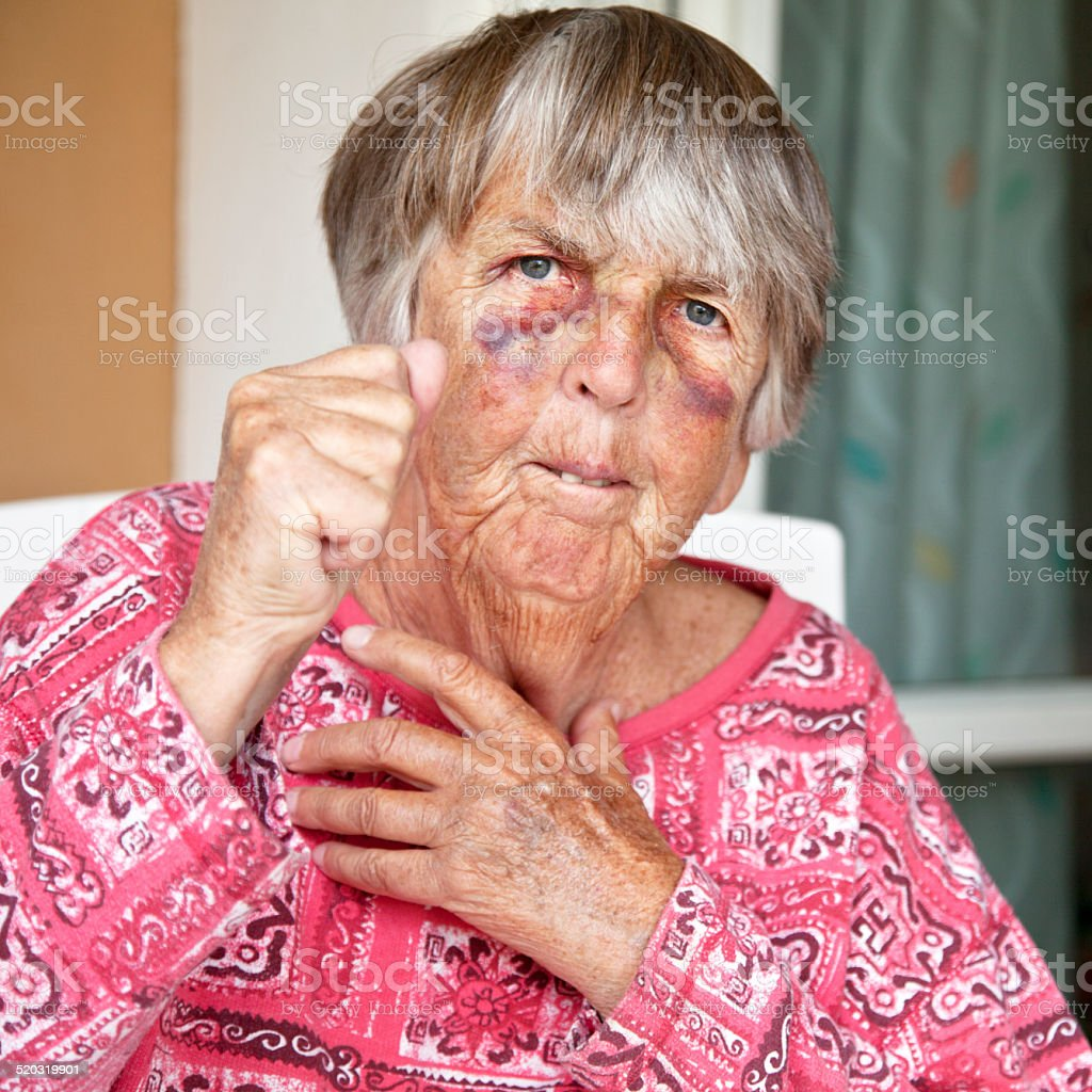 Close up of angry battered senior woman with bruises stock photo