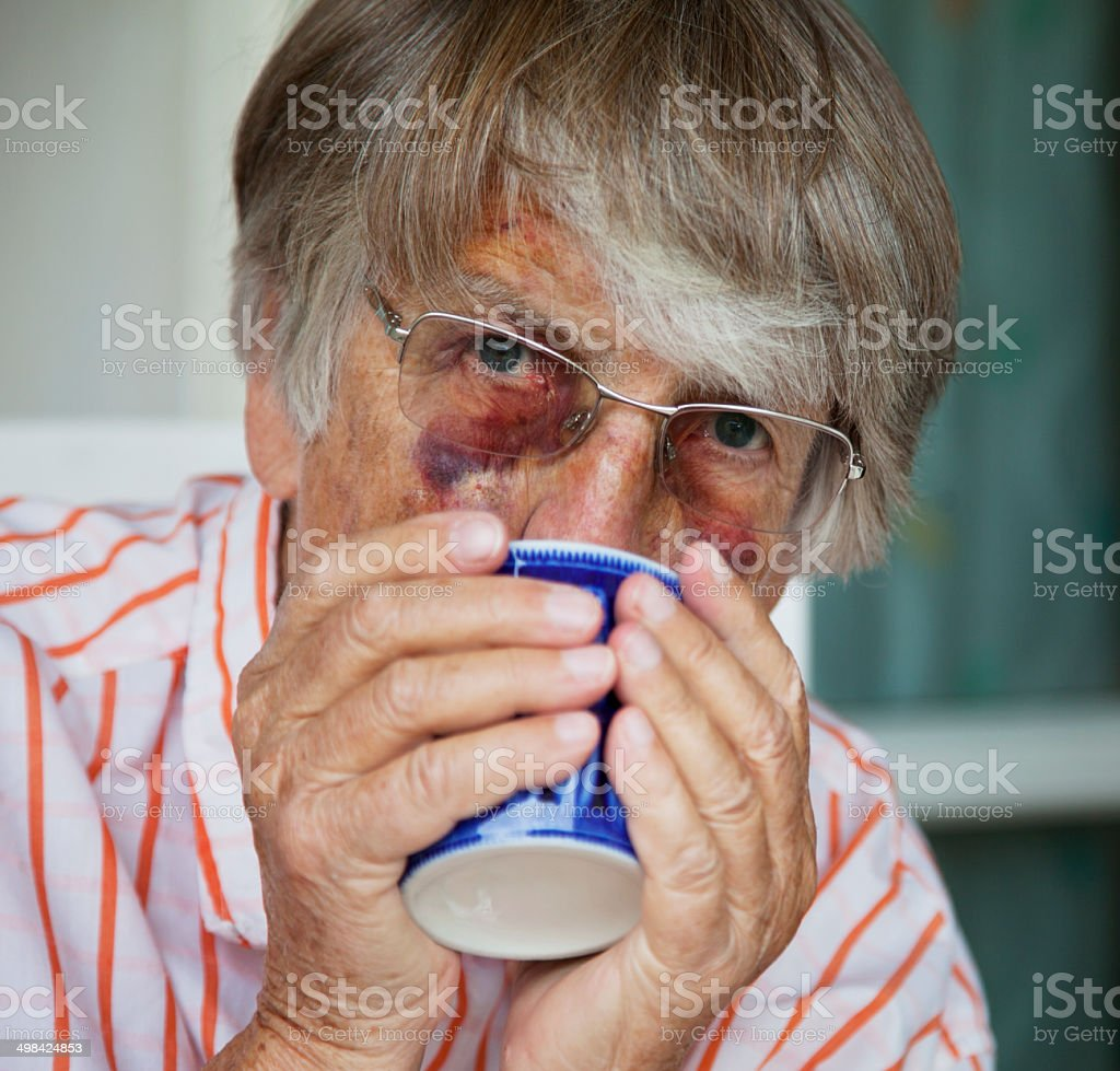 Close up of battered senior woman with bruises drinking tea stock photo