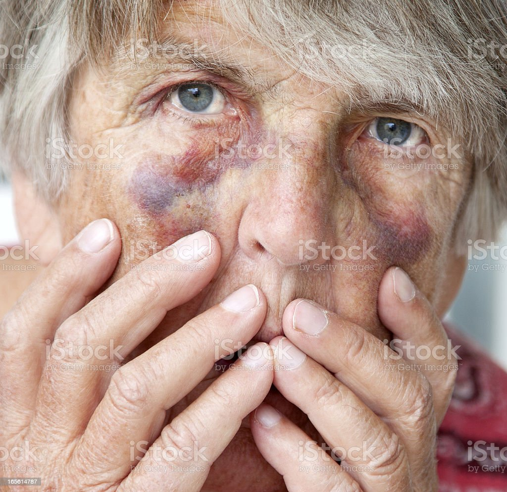 Close up of battered senior woman with bruises stock photo