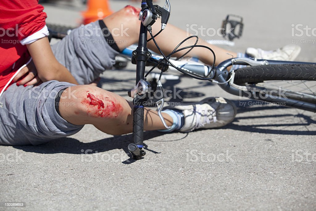 Close up of bloodied knees after a bike crash stock photo