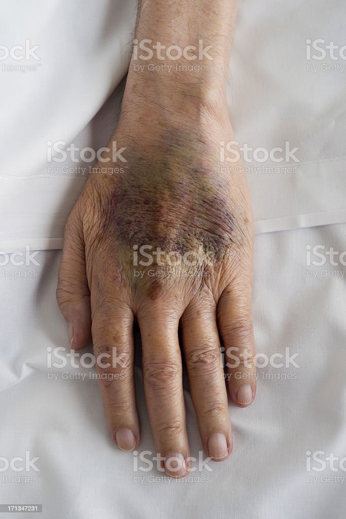 Close up of bruised skin on human hand stock photo