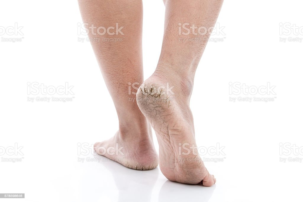 Close up of Cracks on Heels isolated stock photo