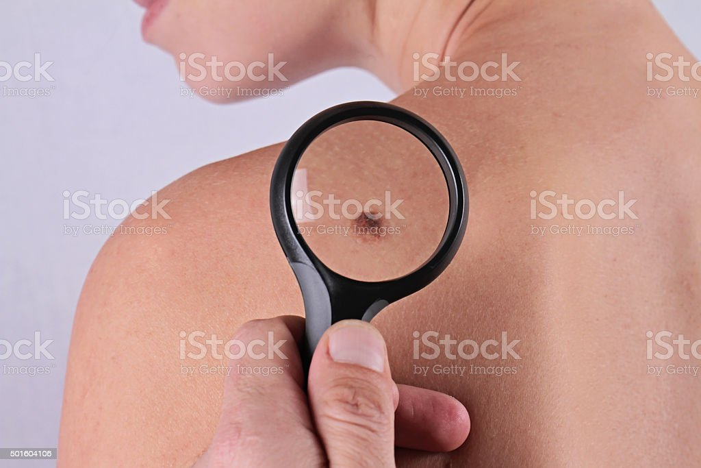 Close up of doctor dermatologist examines a birthmark of patient. stock photo