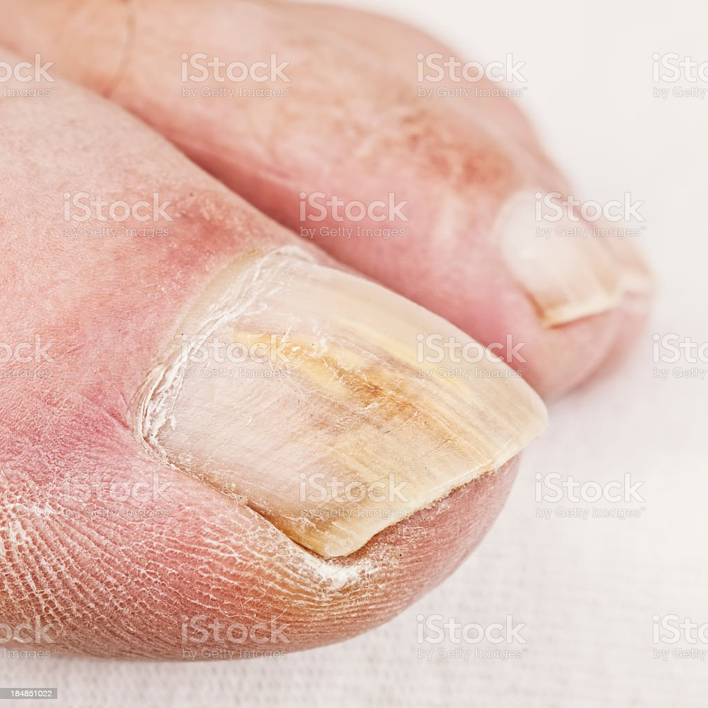 Close up of dry toe with yellowed nail fungus stock photo
