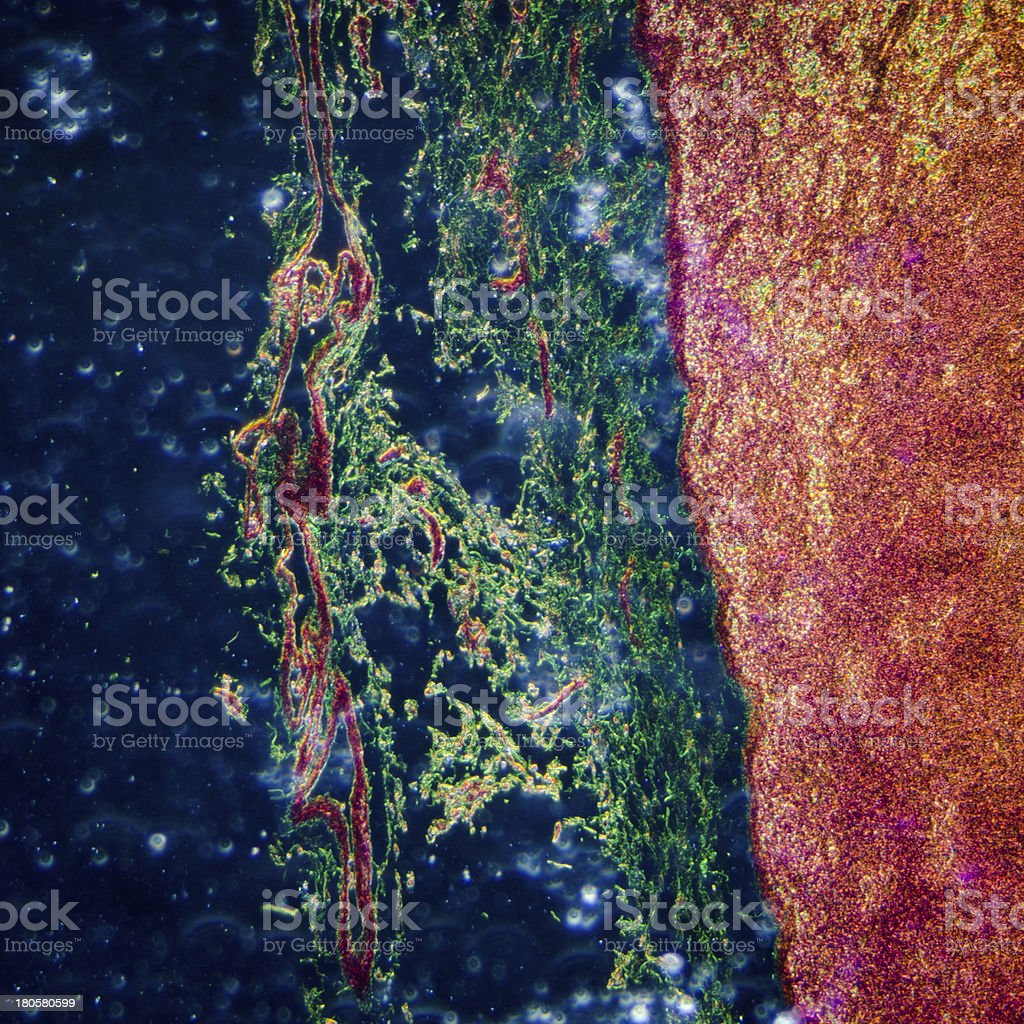 A close up of lymphatic node tissue stock photo