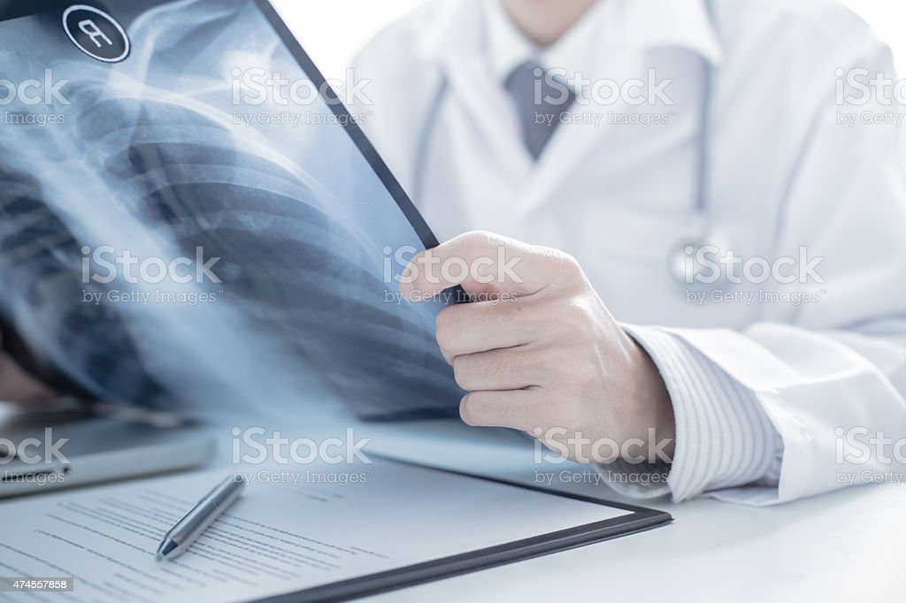 close up of male doctor holding x-ray or roentgen image stock photo
