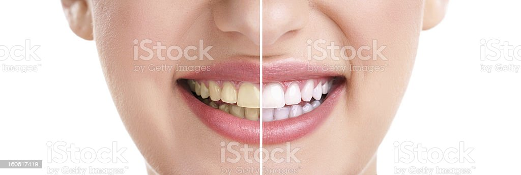 Close up of smiling woman showing white teeth stock photo