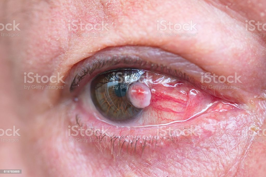 Close up of the eye with squamous cell carcinoma stock photo