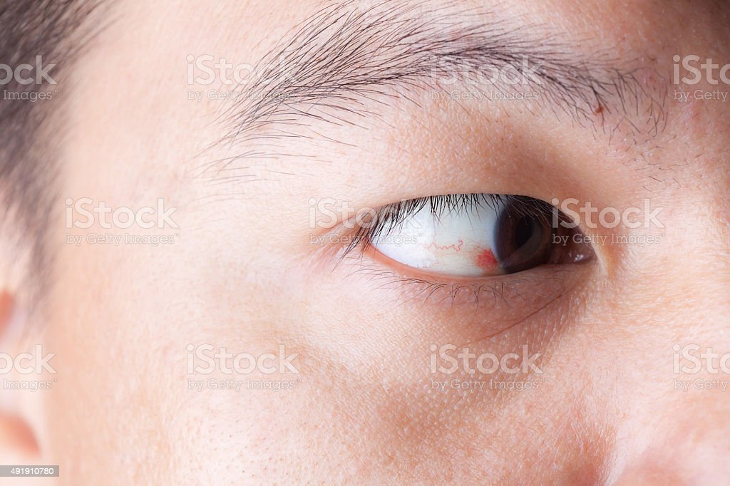Close up of ubconjunctival hemorrhage in eye stock photo