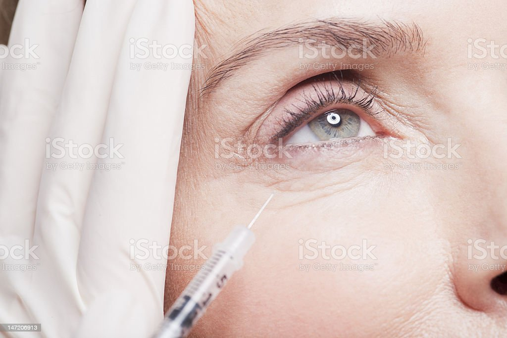 Close up of woman receiving botox injection under eye royalty-free stock photo