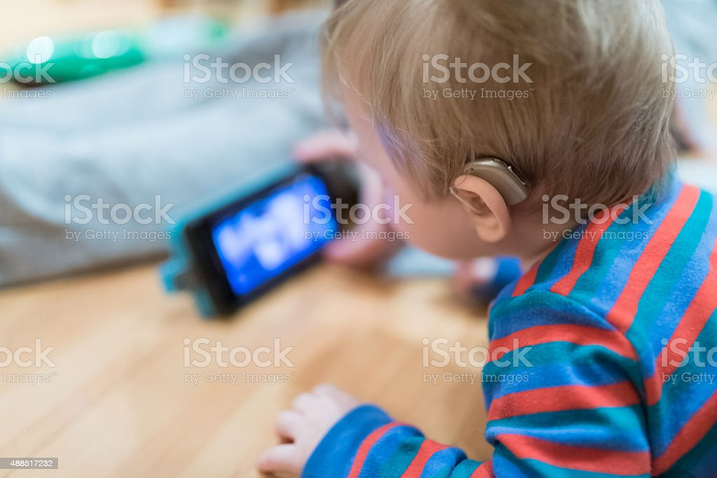 Close up on hearing aid weared by baby stock photo