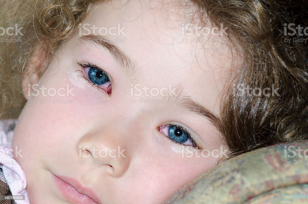 Close up on little girl's eyes having conjunctivitis stock photo