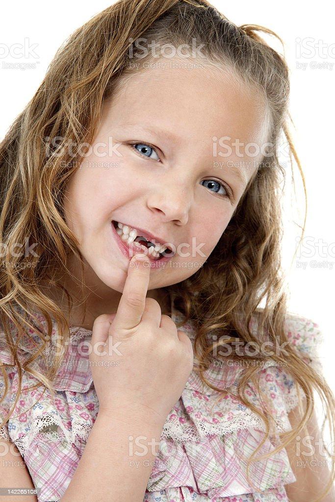 Gros plan portrait de femme montrant les dents manquant. photo libre de droits