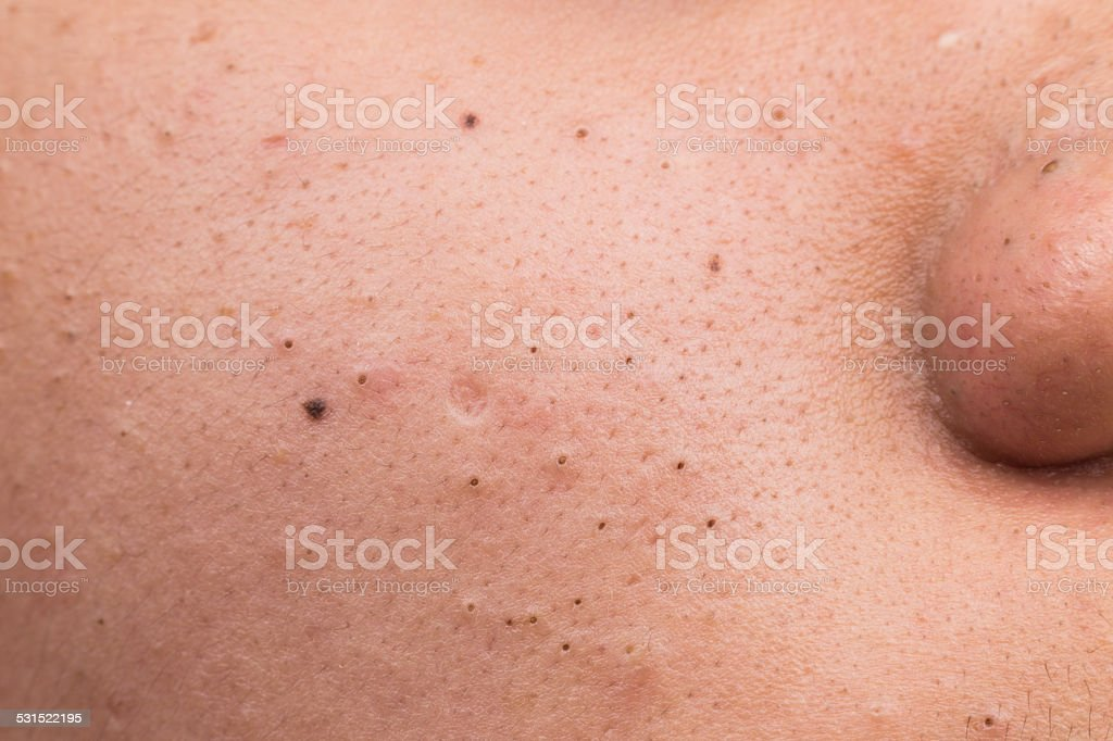 Closed up of pimple blackheads on face stock photo