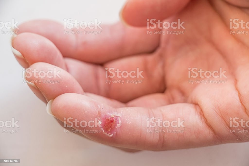 Closed-up of a wound on finger stock photo
