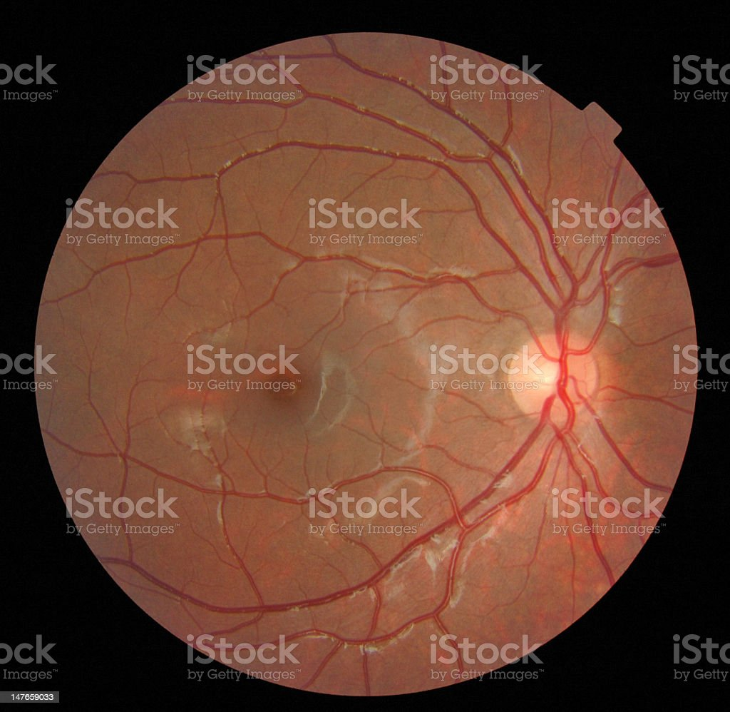 Close-up image of a retina against black background stock photo