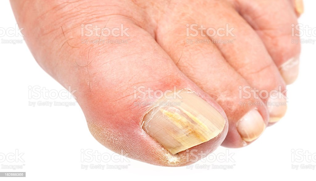 Close-up image of toenail fungus on a white background stock photo