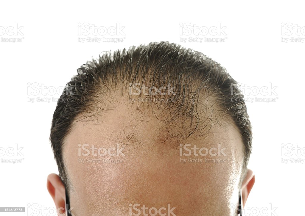 Close-up of a balding man's head over a white background stock photo