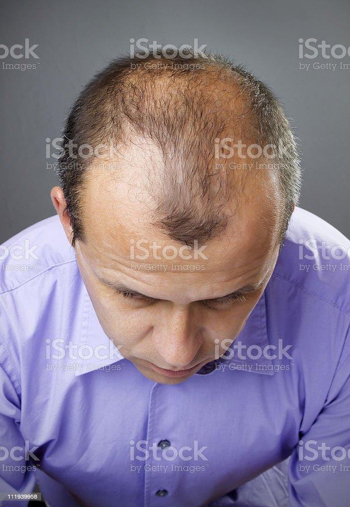 A closeup of a balding man's head stock photo