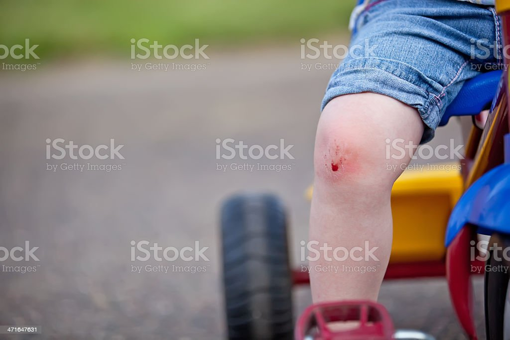 Close-up of a Child's Scraped Knee royalty-free stock photo