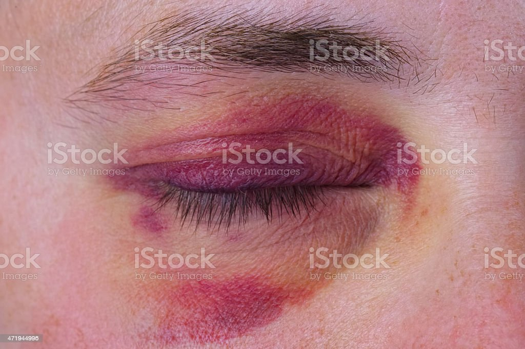 Closeup of a human eye with a purple bruise stock photo