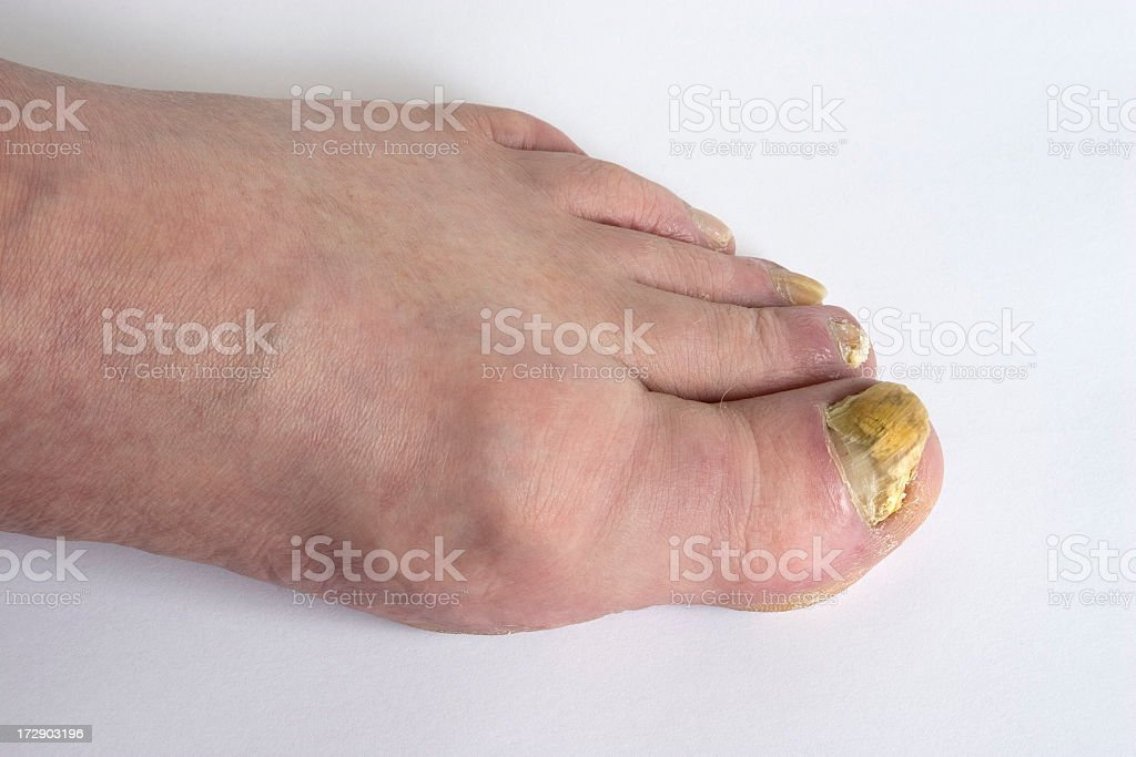 Close-up of a human foot with toenail fungus royalty-free stock photo