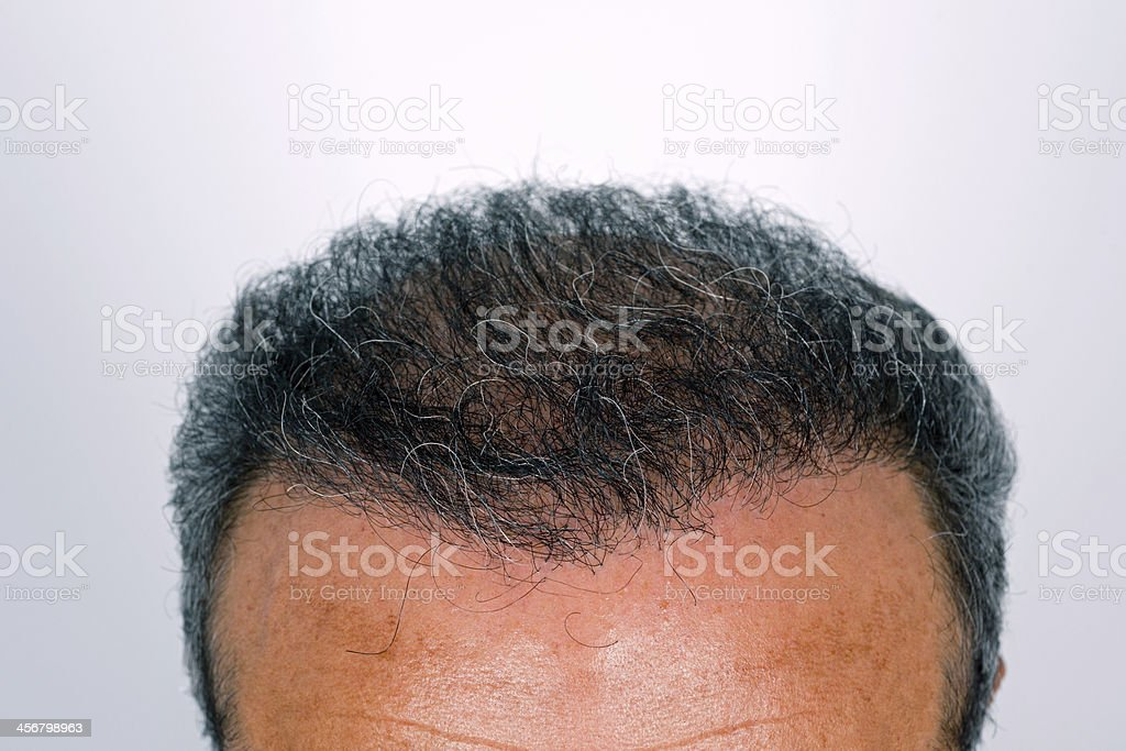 Close-up of a man's head 6 months after hair transplant royalty-free stock photo