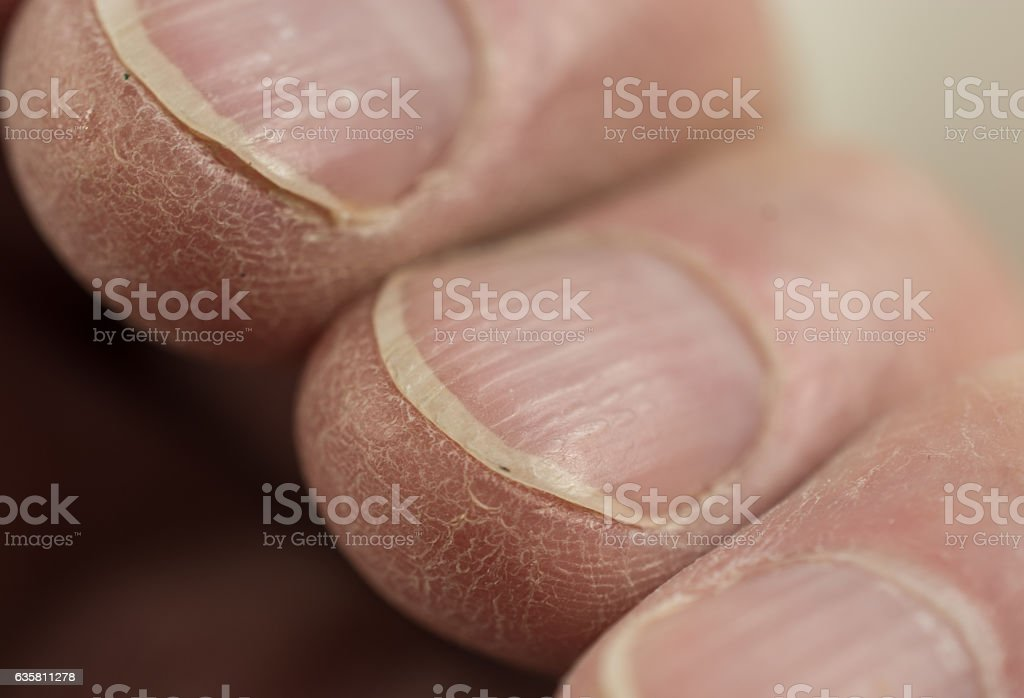 Close-up of a senior man's ridged and dry finger nails stock photo