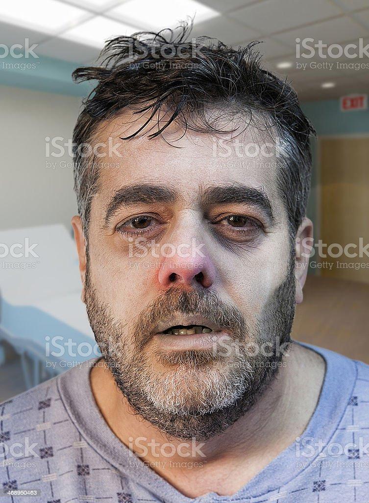 Close-up of a sick man stock photo