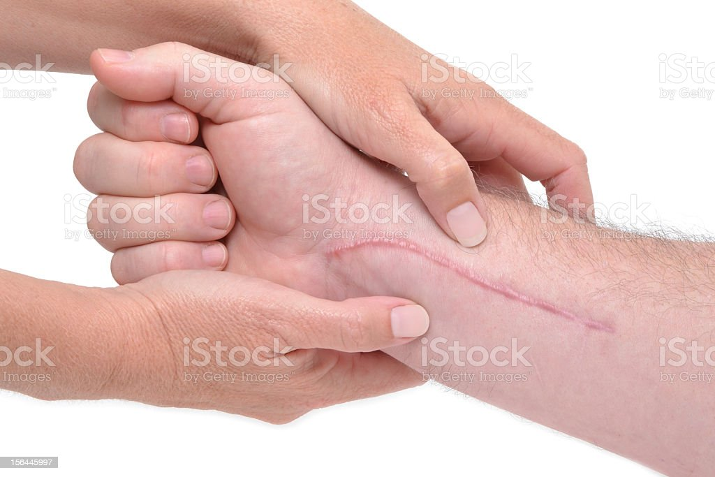 Close-up of arm massage around long scar near wrist royalty-free stock photo