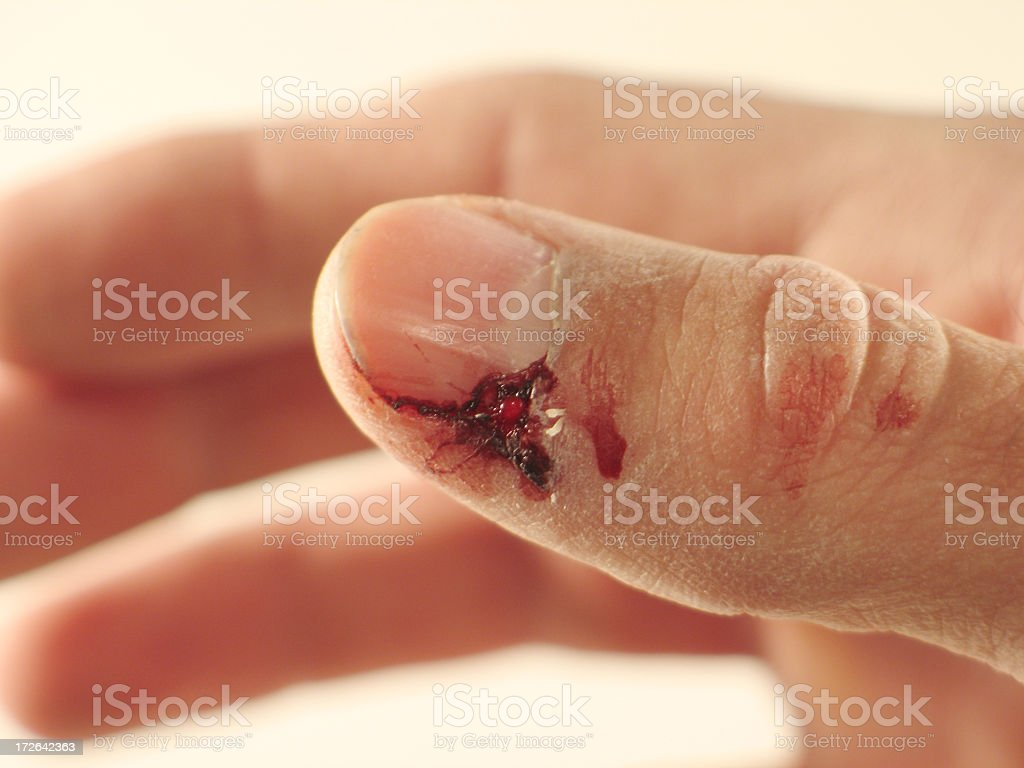 Closeup of Bloody Thumb After Getting Smashed stock photo