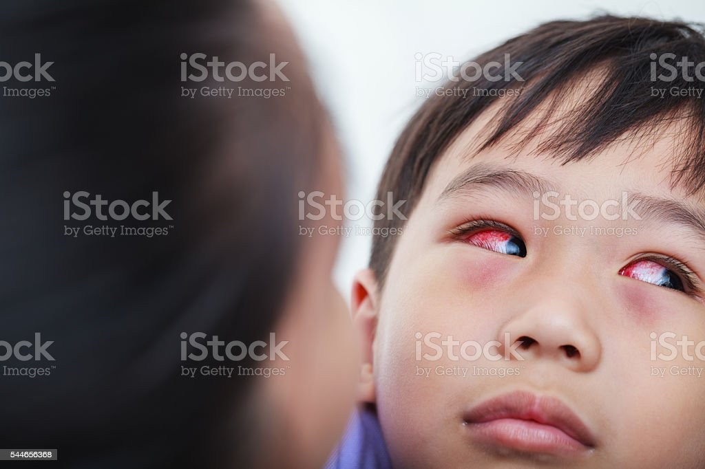 Closeup of chronic conjunctivitis with a red iris. stock photo