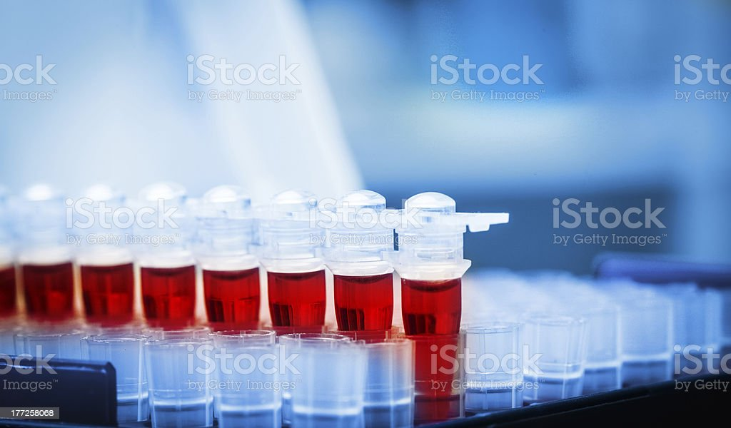 Close-up of collection of blood samples in the lab stock photo