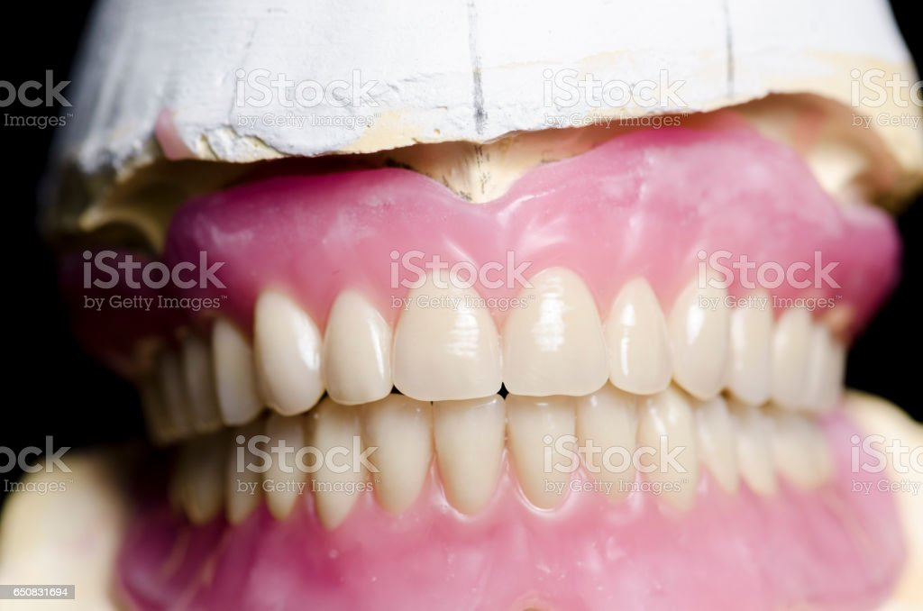 Closeup of dental prosthesis porcelain teeth in a mold stock photo
