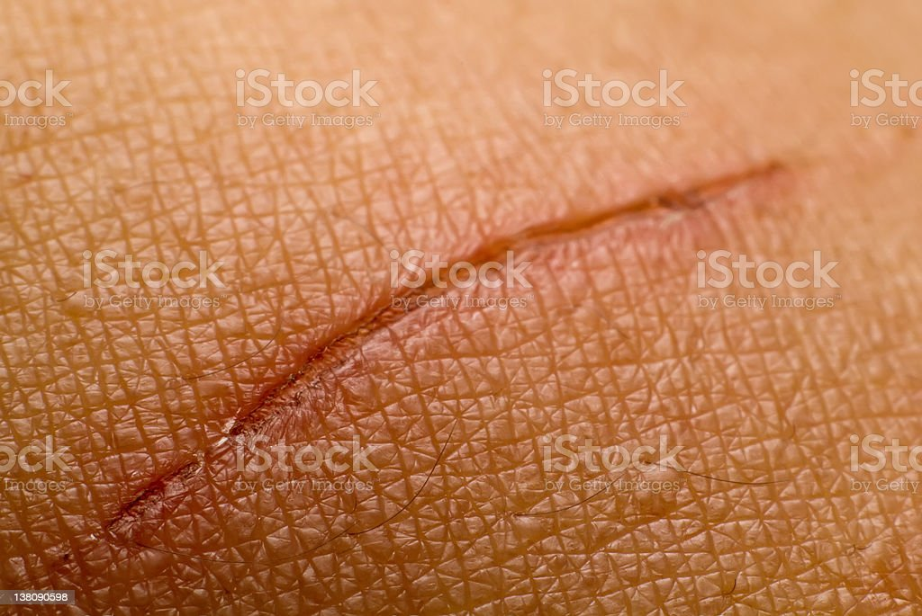 Closeup of horizontal cut on skin which is scarring over stock photo