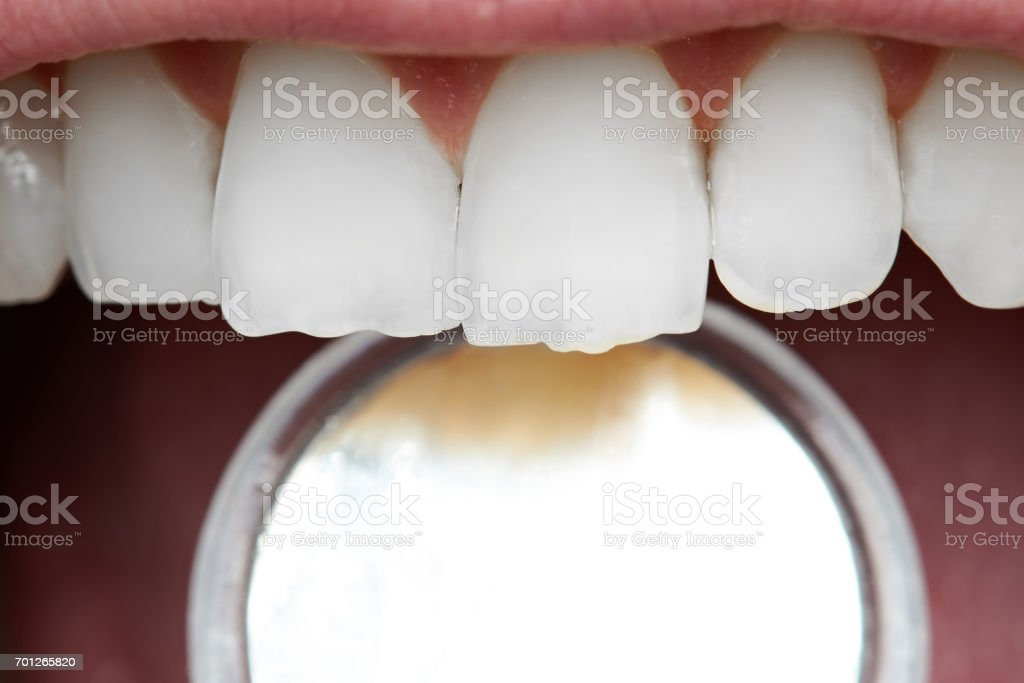 Close-up of human front teeth stock photo