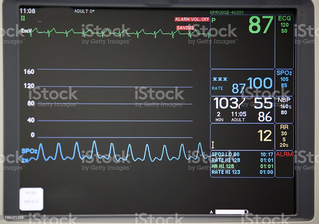 Close-up of intensive care unit monitoring screen stock photo
