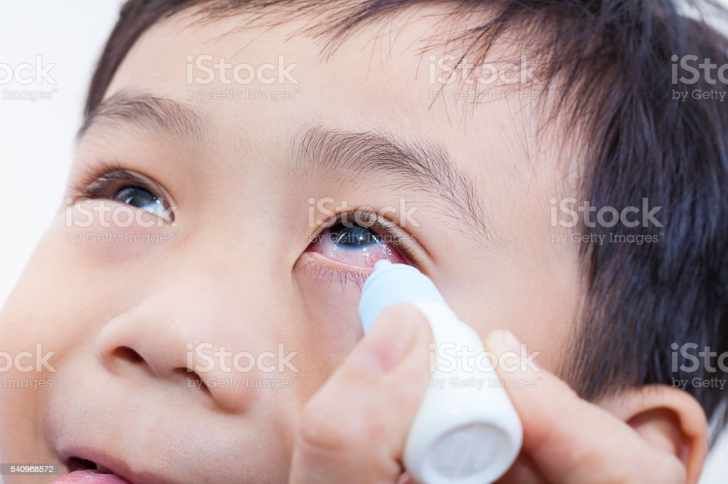 Closeup of parent pouring eye drops in eye her son stock photo