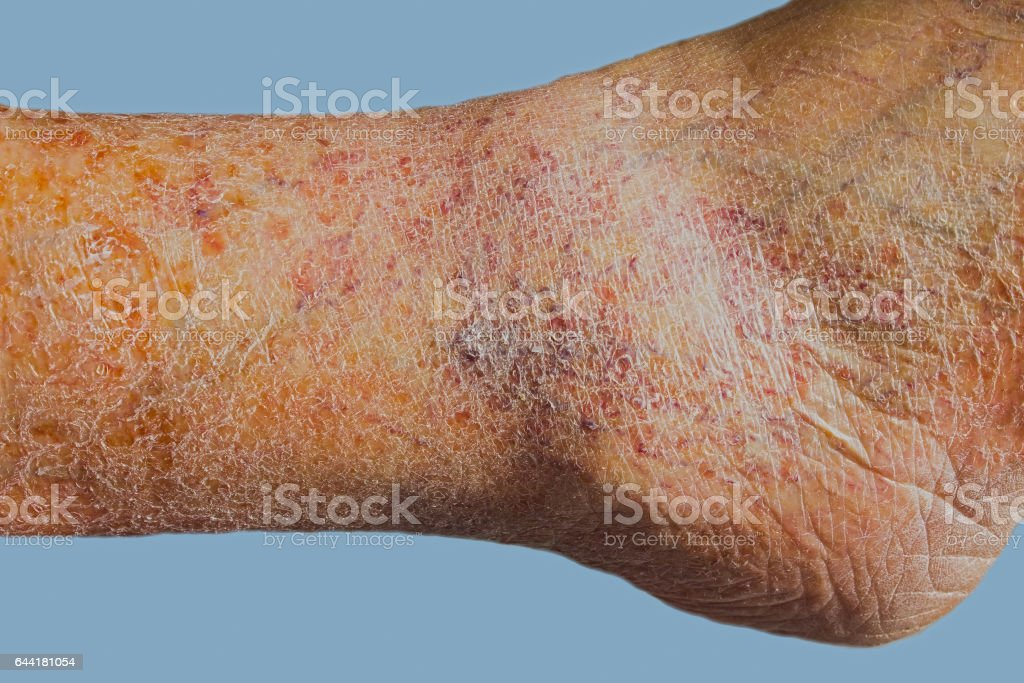 Close-up of skin with varicose veins stock photo