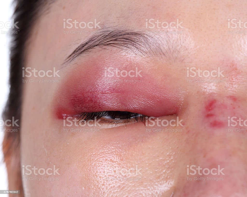 close-up of upper eye lid swell after nose job stock photo