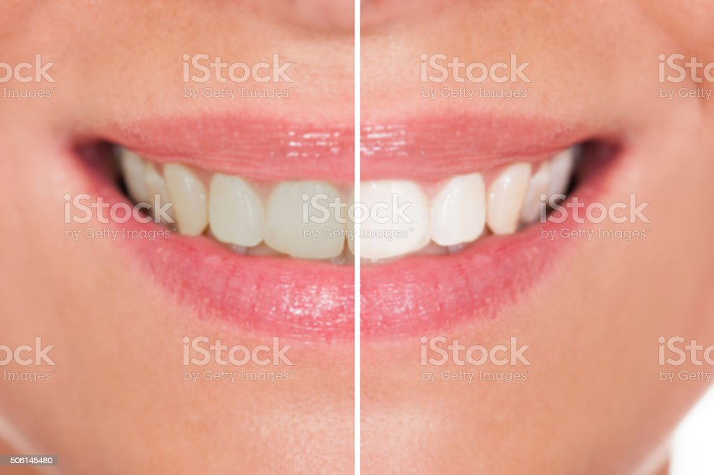 Close-up Of Woman Teeth stock photo