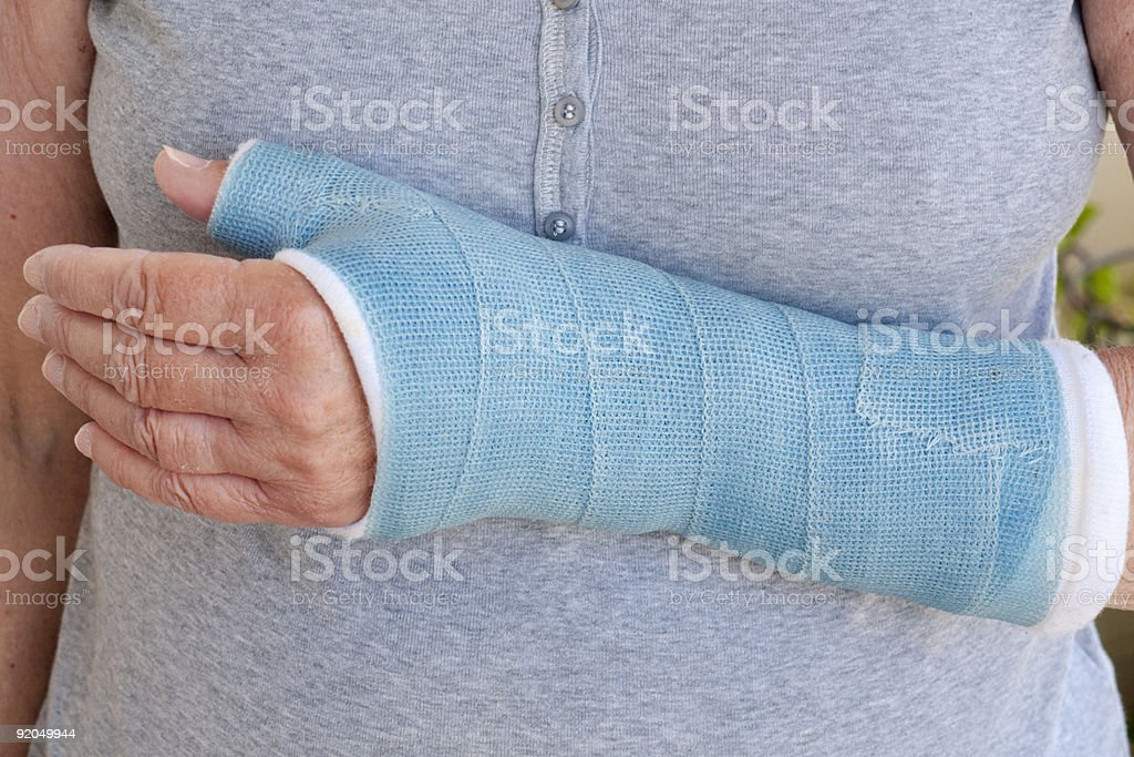 Close-up of woman's arm in blue cast royalty-free stock photo