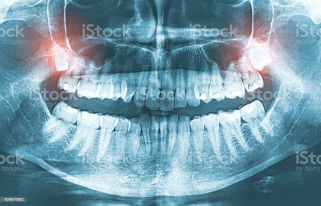 Closeup of x-ray image growing wisdom teeth pain concept. stock photo