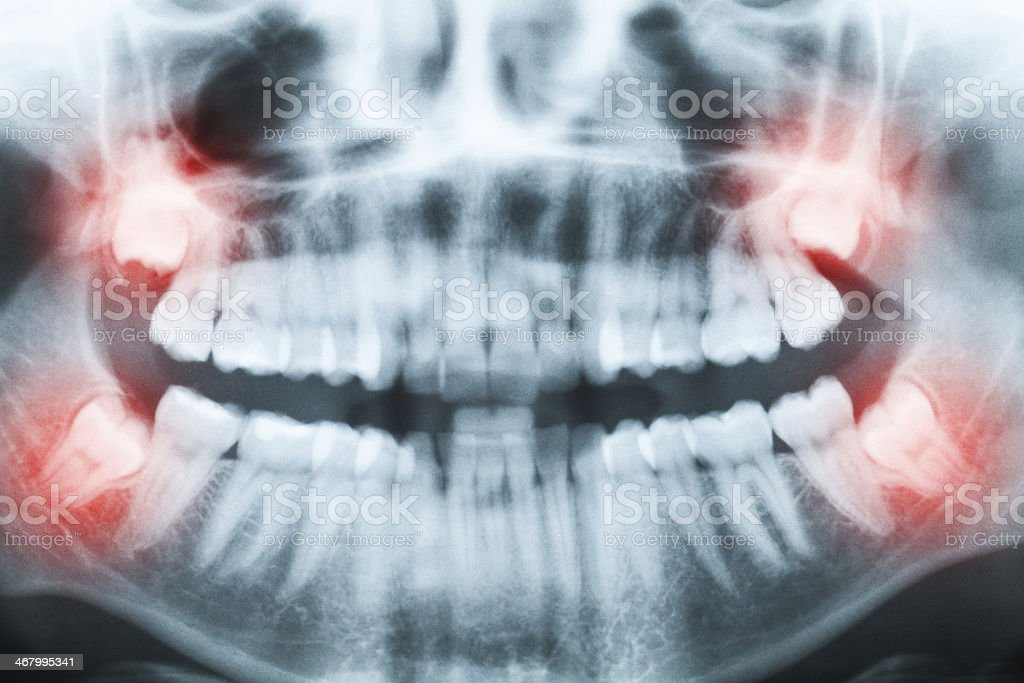 Closeup of x-ray - teeth and mouth image stock photo