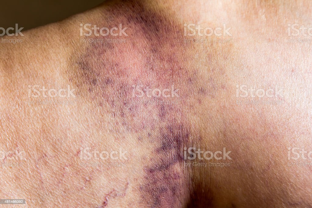 Closeup on a Bruise on wounded old woman leg skin stock photo